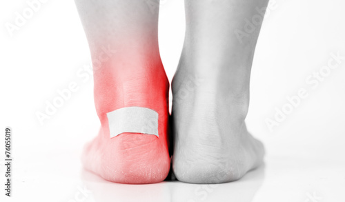 canvas print picture Closeup of woman's heel with blister plaster on