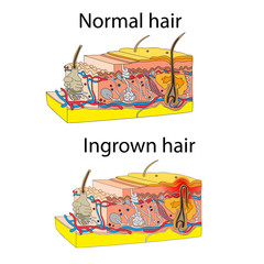 Skin with ingrown hair