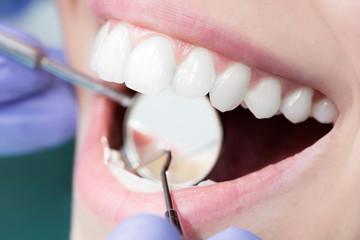 Dentist Close-Up