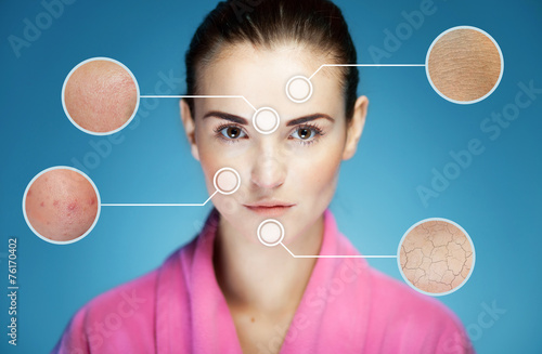 Concept of skincare and skin problems of face - 76170402