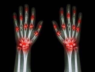 multiple joint arthritis both hands ( Gout , Rheumatoid )