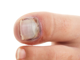 Broken big toe with nail detachment front view