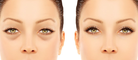 Lower-Eyelid Blepharoplasty.Upper blepharoplasty