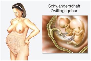Zwillingsgeburt.Schwangerschaft