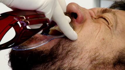 Extreme closeup of man starting teeth whitening