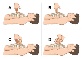 First Aid resuscitation (CPR), massage compression the  chest