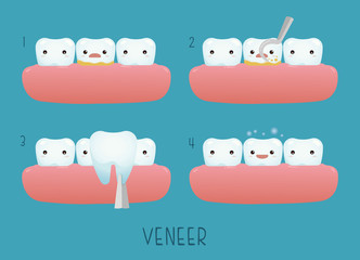 Veneer tooth of dental