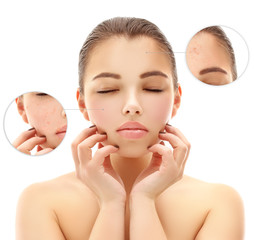 Problem skin, acne
