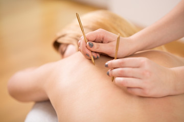 Therapist doing acupuncture