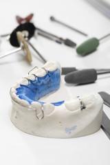 Narzędzia ortodontyczne, aparat ortodontyczny