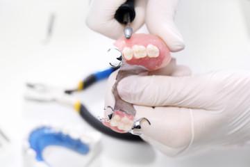 Proteza częściowa, stomatologia i protetyka