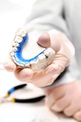 Aparat ortodontyczny, odlew gipsowy, aparat ruchomy