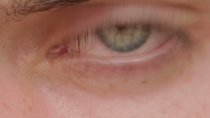 opening and closing of one eye of young man  very sad - tears - allergy