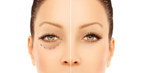 Marking the face.Lower-Eyelid Blepharoplasty.Asian Eyelid Surger