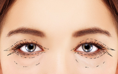 Perforation lines on females face, plastic surgery concept.
