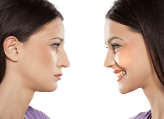 female face, before and after cosmetic nose surgery