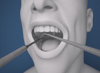 Testa, bocca aperta, dente, dentista attrezzo