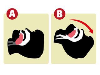 First Aid resuscitation (CPR), clearing breathing