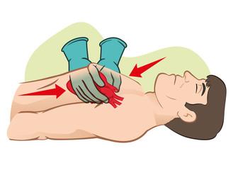 First Aid cardiac resuscitation (CPR), open heart massage