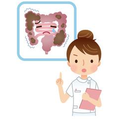 便秘の大腸 説明する看護士