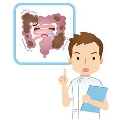 便秘の大腸 説明する医師