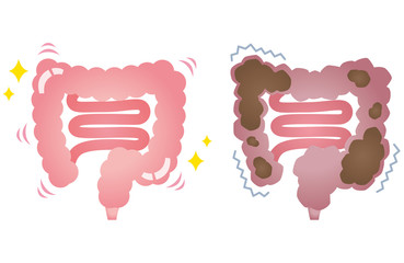 健康な大腸 便秘の大腸