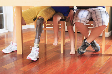 Grandmother with a prosthetic leg with her grandchildren
