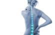 Leinwanddruck Bild - Frau WIrbelsäule Schmerz Rücken