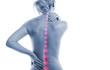 Leinwandbild Motiv Frau mit Rückenschmerzen Punkten