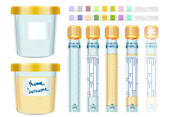 Urinalysis Yellow Cap Tubes Set, empty, filled, frozen and dipis