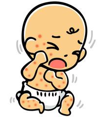 発疹赤ちゃん