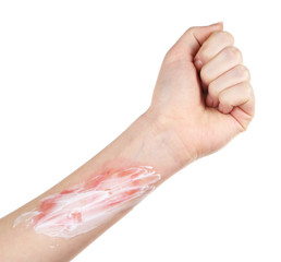Treatment of burns on female hand isolated on white