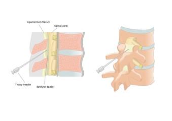 anestesia epidurale