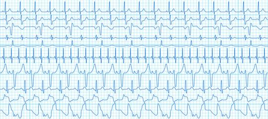 Cardiograms