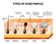 Types of acne pimples - 77228498