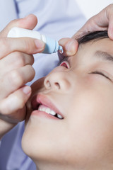 Closeup of doctor pouring eye drops in sick children