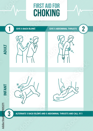 First aid for choking - 77405271