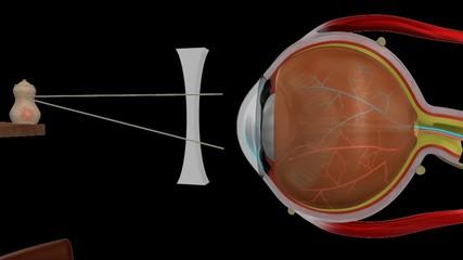 Myopia concave lens