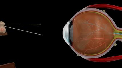 Myopia eye lens