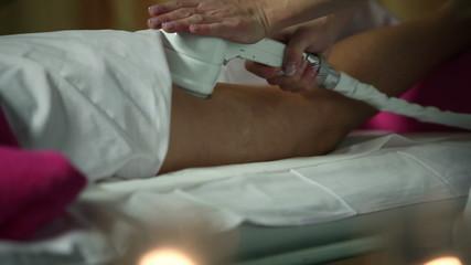 Close up of a celulite massage in spa