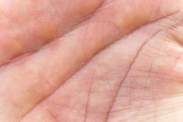 Leistenhaut Handinnenfläche