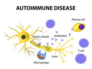 Autoimmune Disease. The mechanisms of neuronal damage in multipl