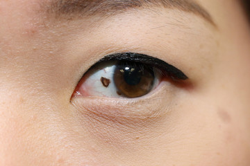 mole on asian woman eye