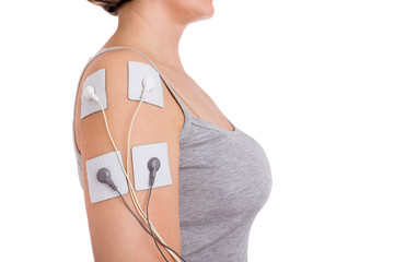 Treatment of shoulder tendinitis. Electrical stimulator.