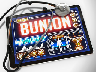 Bunion on the Display of Medical Tablet.