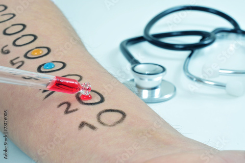 skin allergy test - 78126006