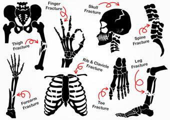 Set Bone Fracture Icon , black & white design