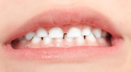 teeth in children. close-up