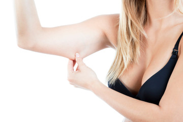 Woman showing flabby arm