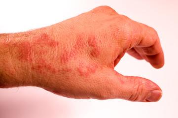 linke Hand erkrankt Ausschlag ud2